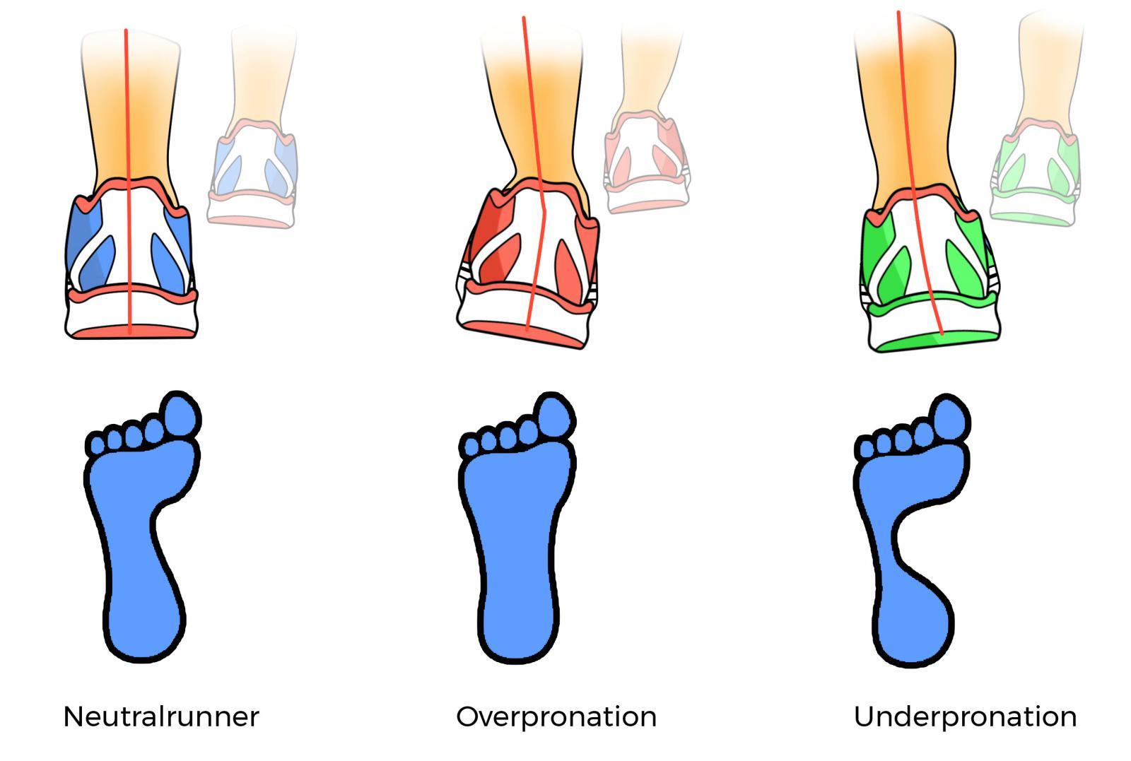 Neutralrunner Overpronation Underpronation